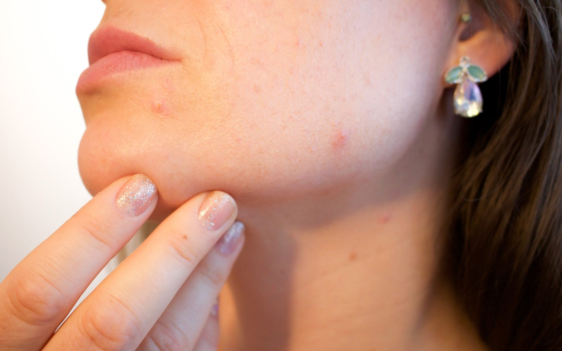 Skin break out Medicine Treatment Found In Natural Acne Products